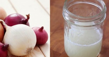 Onion-juice-to-treat-hair-loss