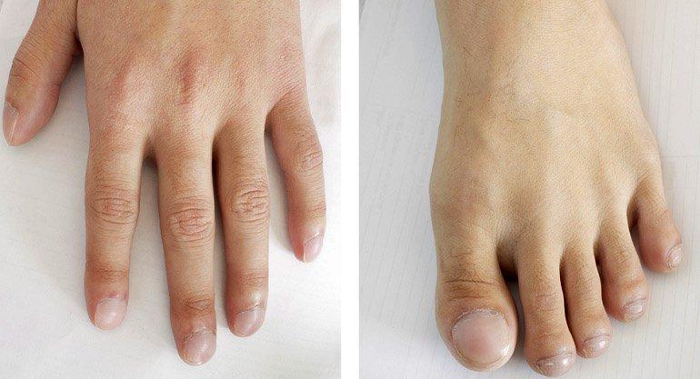Las advertencias que pueden darte tus uñas