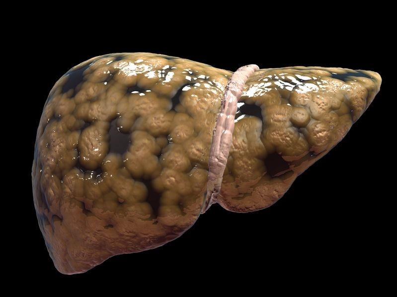 la inflamación del hígado graso