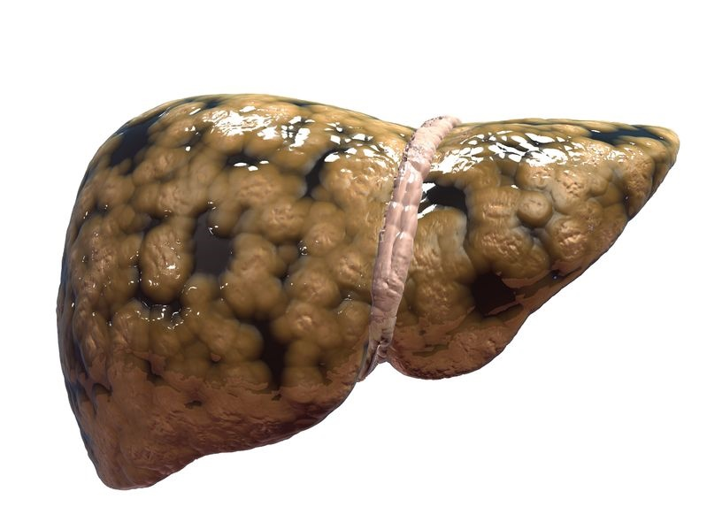 remedios naturales para la prevenci u00f3n de h u00edgado graso