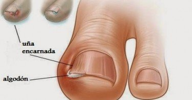 how-to-treat-an-ingrown-toenail-home-treatment