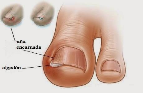 Tratamiento casero para u as encarnadas del pie - Comment bien se couper les ongles des mains ...