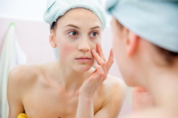 remover las ojeras de manera natural