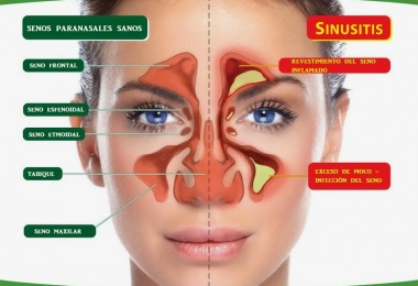 Sinus-1-1