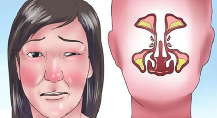 Cómo limpiar los senos frontales
