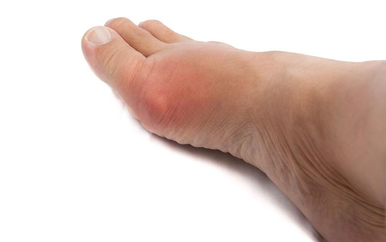 acido urico alto o que significa acido urico e prostatite como bajar acido urico rapido