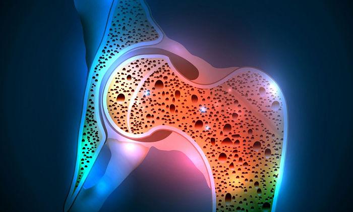 Signos de que padeces osteoporosis