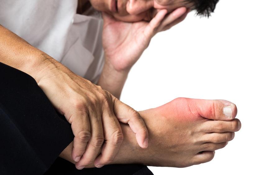 El tratamiento de la eccema microbiana de las manos en las manos