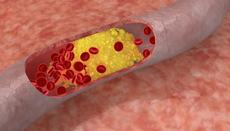 cibi da evitare per acido urico alto alimentos que se deben consumir con acido urico alto cha para tratar a gota