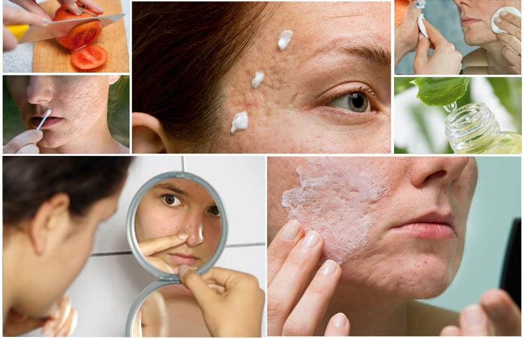 las cicatrices del acne tratamientos naturales