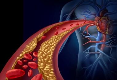 limpiar arterias obstruidas
