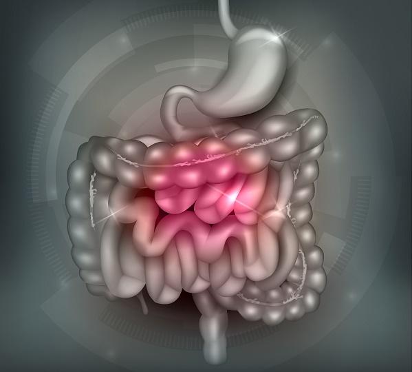 sindrome-del-intestino-irritable