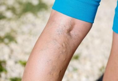 varices piernas ejercicios