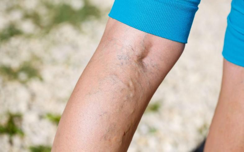 prevenir las várices en las piernas ejercicios