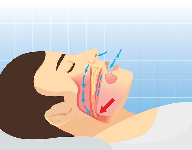 Problemas que causa la apnea del sueño