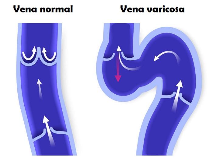 tratar las varices Venas varicosas varices