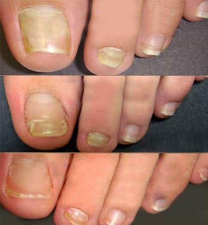 Mikoz de las uñas en las manos los preparados y el tratamiento