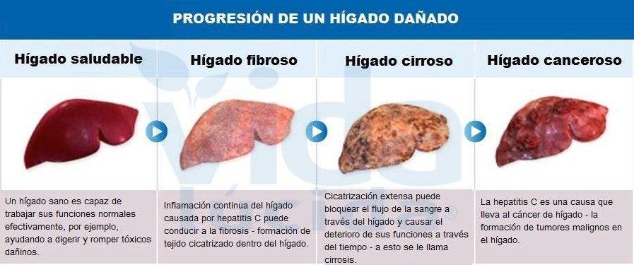 hígado dañado progresión