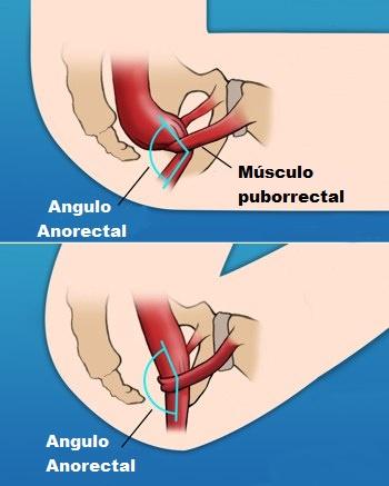 evacuar mejor Angulo anorectal
