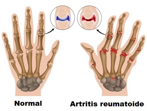 Dolor de articulaciones Artritis manos
