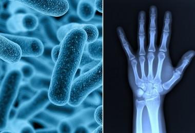 Bacteriass