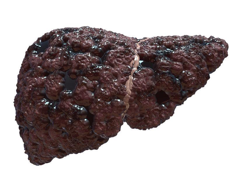 grasa en el hígado que presenta cirrosis hepática