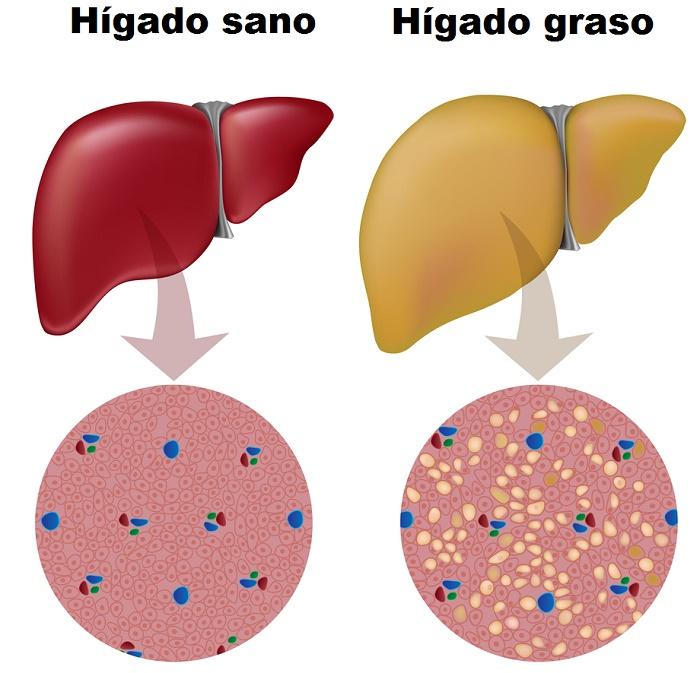 Hígado graso frente a un hígado sano para ver sus diferencias
