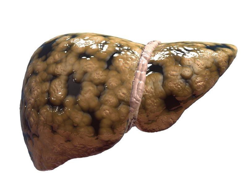 Hígado graso1