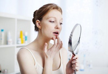 Herpes labial3 boca labios