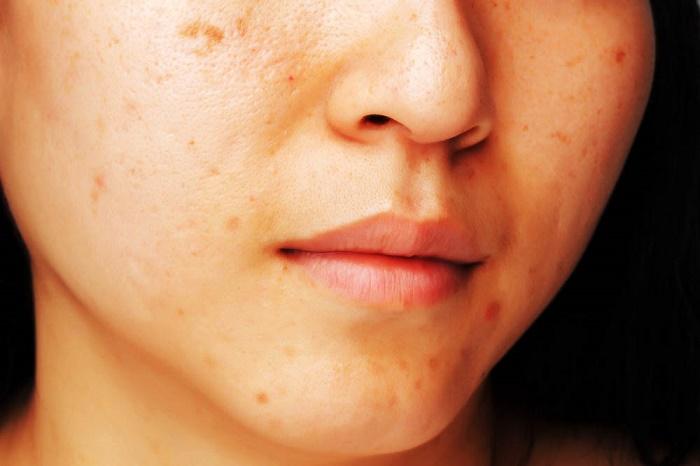 Si son peligrosas las manchas de pigmento en el cuerpo
