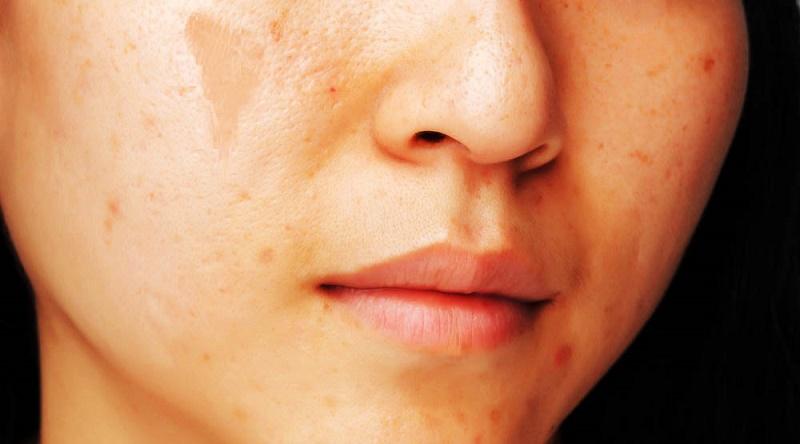 A que enfermedad las manchas de pigmento en las manos