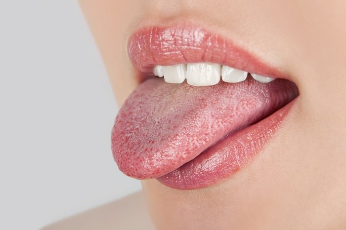 candidiasis bucal presente en la lengua