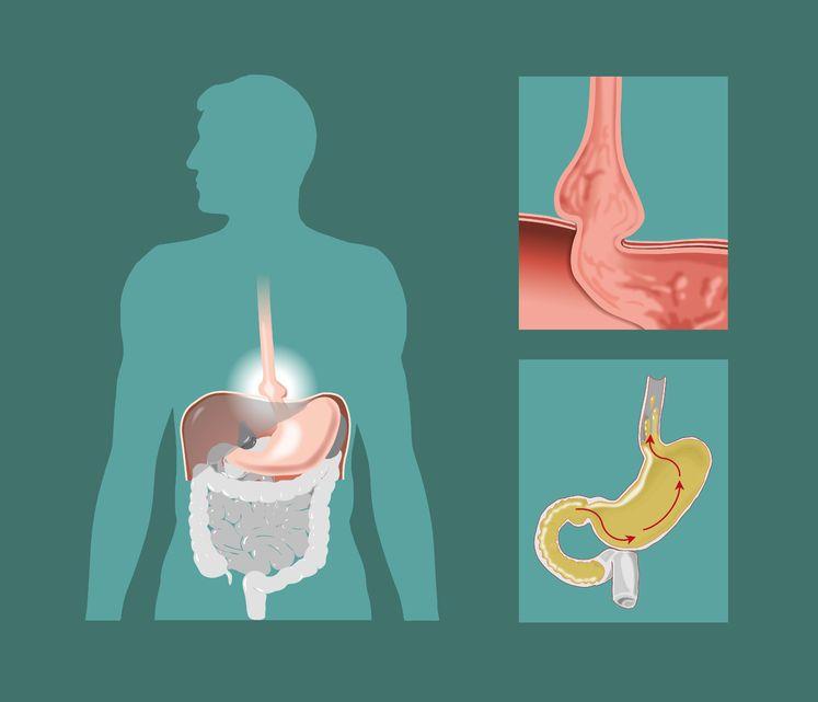 causas de la hernia de hiato