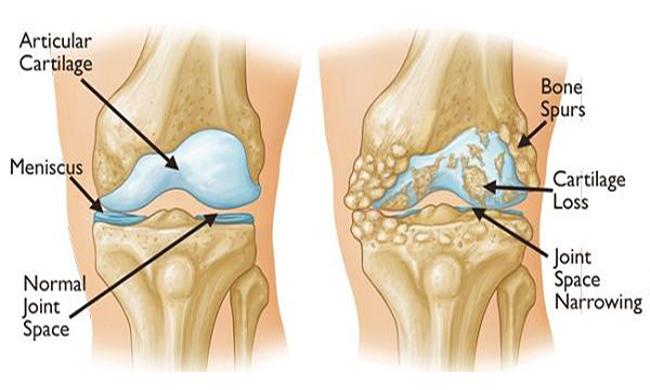 Que es bueno para el dolor en las rodillas