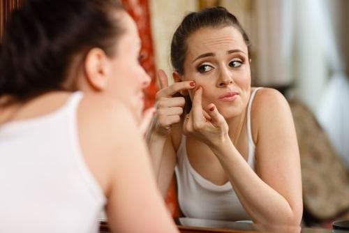 Consejos para tratar el acné de manera efectiva