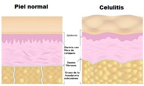 Gráfico celulitis