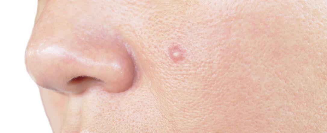 acné piel salud intestino