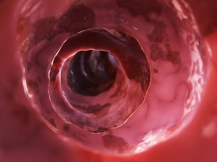 cómo se desarrolla la enfermedad de crohn