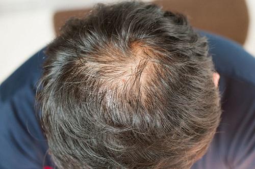 Caen los cabellos de la parte temporal de la cabeza