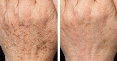 fraxel_skin_resurfacing-before_after-4