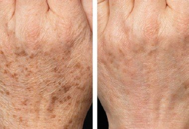 fraxel_skin_resurfacing-before_after-4