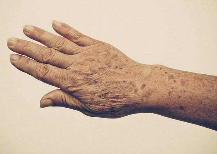 manchas en las manos
