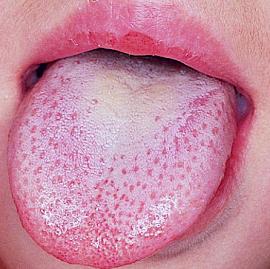 white-bumps-on-tongue