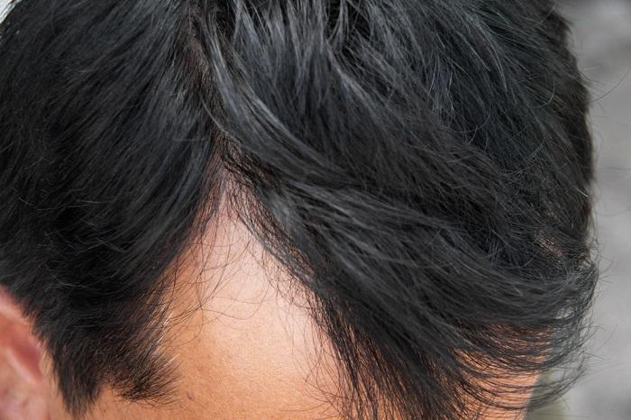 La persona abotagada la caída de los cabello