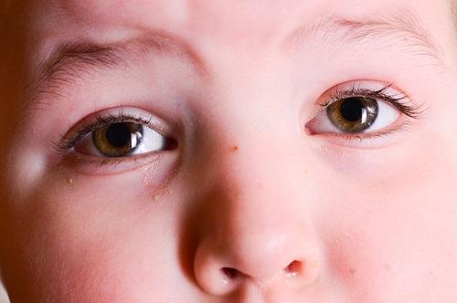conjuntivitis viral en niños