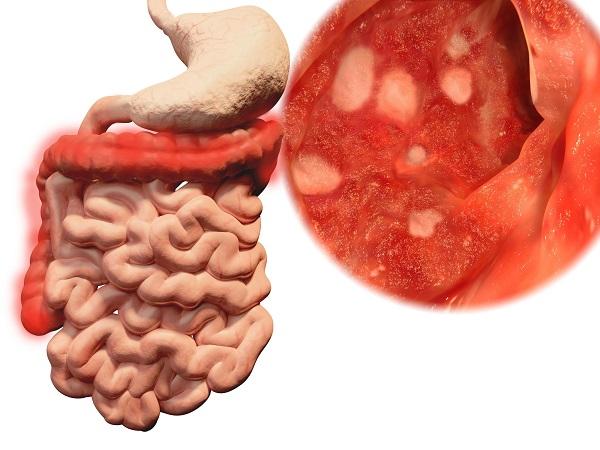 gráfico colitis ulcerosa