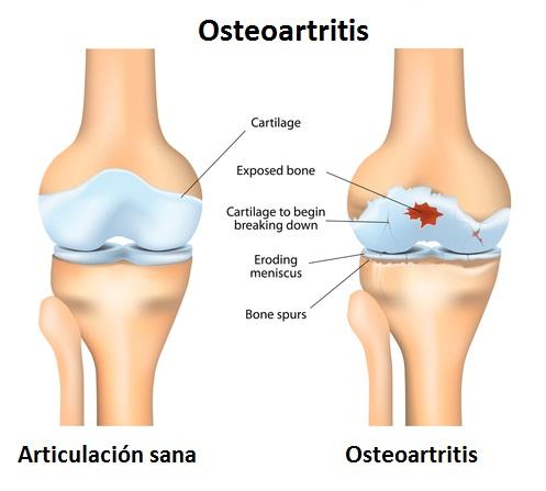 gráfico osteoartritis