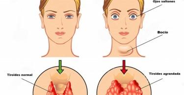 hyperthyroidism-medical-illustration-main-symptoms-45956855