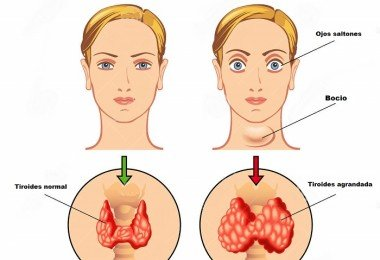 hyperthyroidism-medical-illustration-main-symptoms-45956855