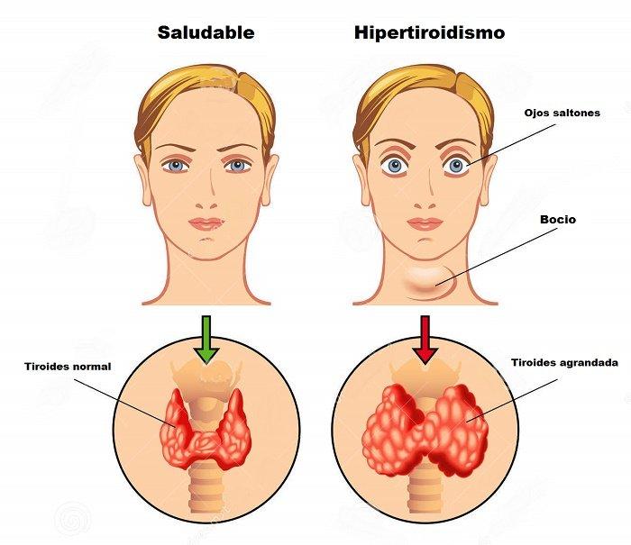 que es bueno para curar la gota te blanco y acido urico cual es el nivel normal de acido urico en sangre
